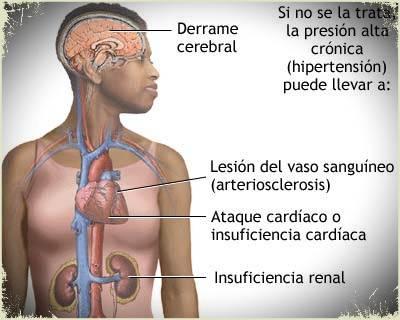 hipertensión y daño renal